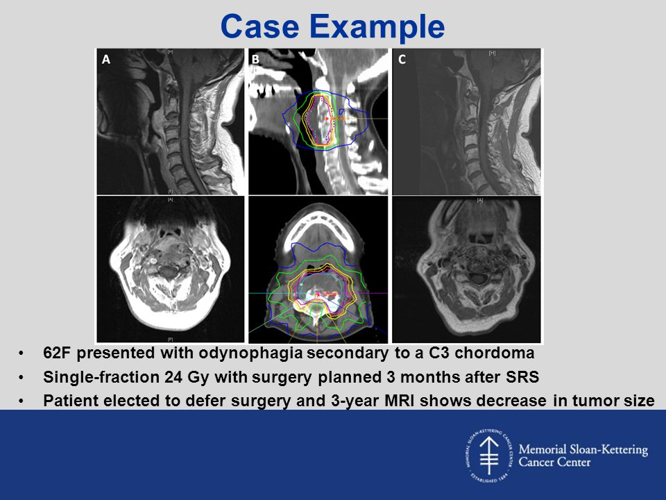 Case Example 62F presented with odynophagia secondary to a C3 chordoma
