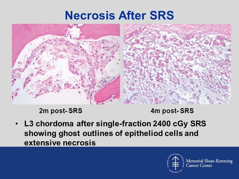 Necrosis After SRS 2m post- SRS. 4m post- SRS.