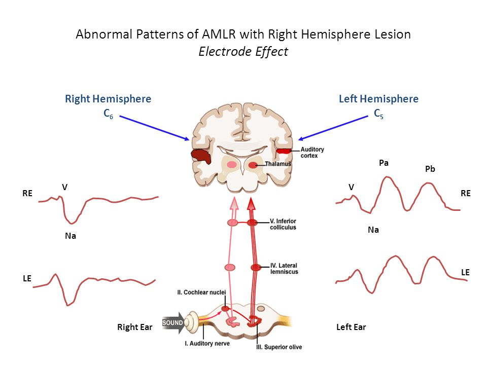 Abnormal Patterns of AMLR with Right Hemisphere Lesion Electrode Effect