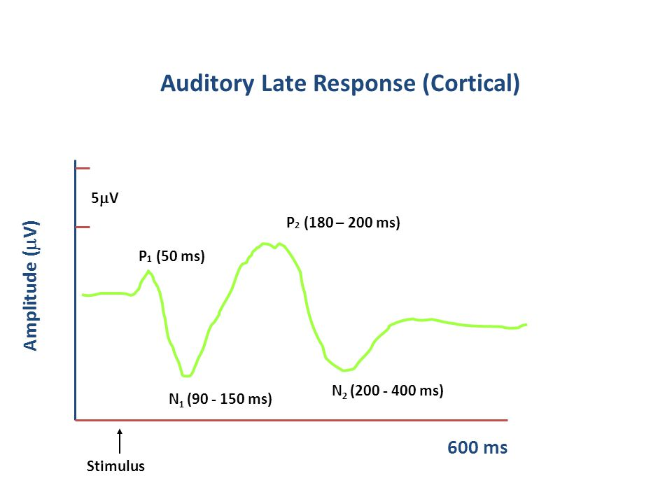 Auditory Late Response (Cortical)