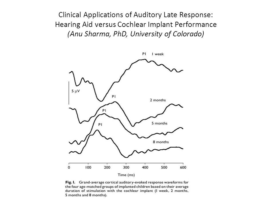 Clinical Applications of Auditory Late Response: Hearing Aid versus Cochlear Implant Performance (Anu Sharma, PhD, University of Colorado)