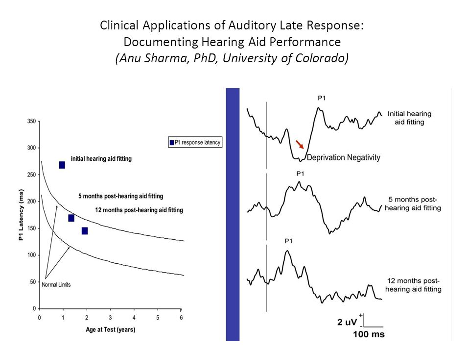 Clinical Applications of Auditory Late Response: Documenting Hearing Aid Performance (Anu Sharma, PhD, University of Colorado)