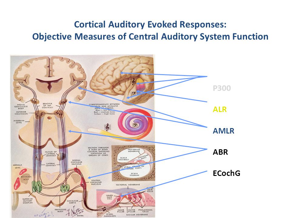 Cortical Auditory Evoked Responses: Objective Measures of Central Auditory System Function