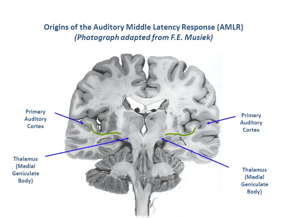 Origins of the Auditory Middle Latency Response (AMLR) (Photograph adapted from F.E. Musiek)