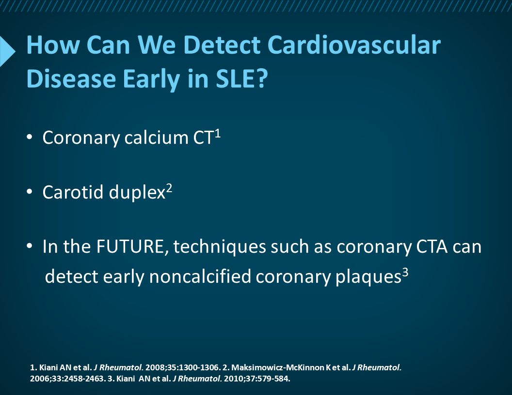 How Can We Detect Cardiovascular Disease Early in SLE