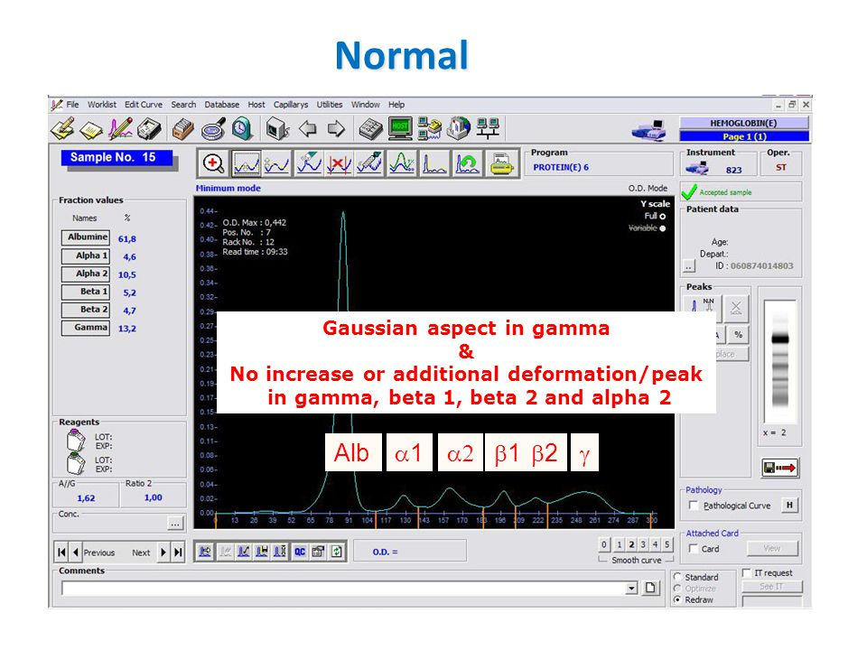 Normal Alb a1 a2 b1 b2 g Gaussian aspect in gamma &