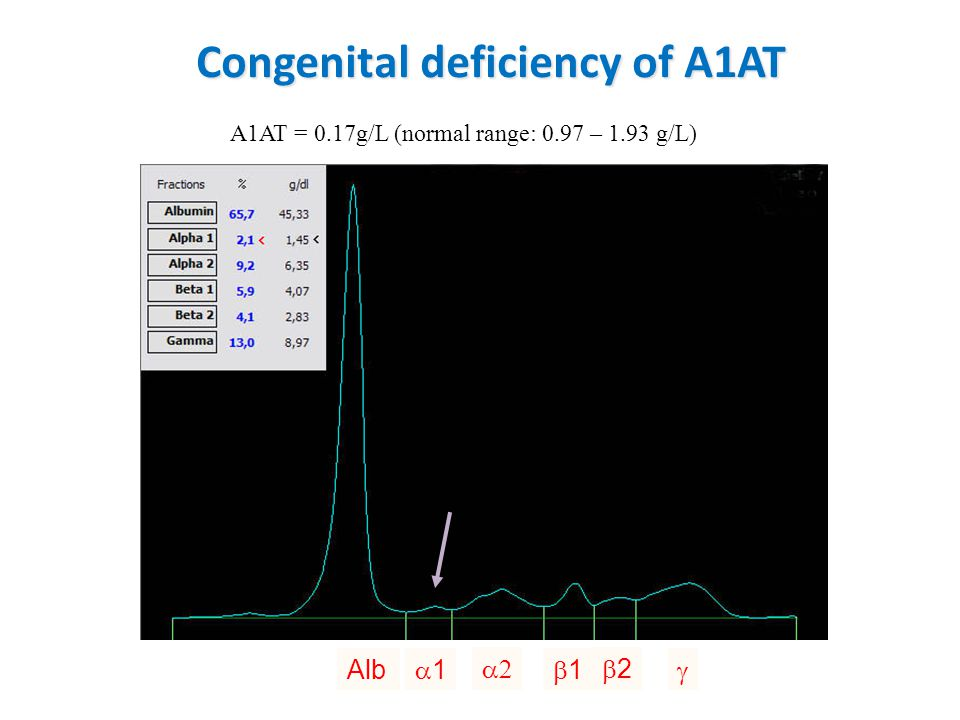 Congenital deficiency of A1AT