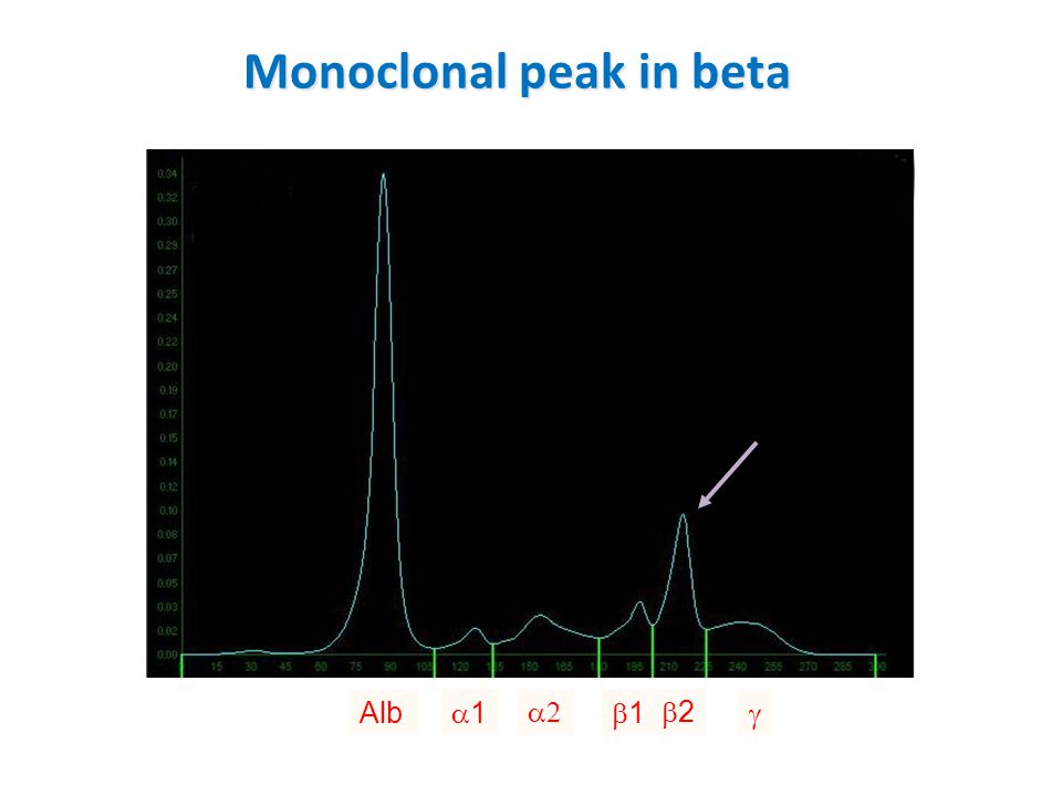 Monoclonal peak in beta