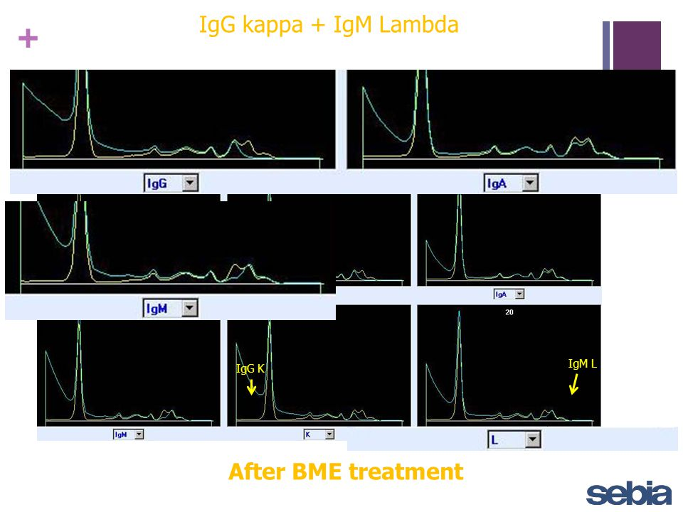 IgG kappa + IgM Lambda IgM L IgG K After BME treatment