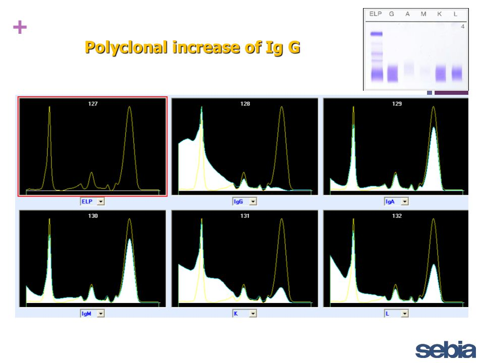 Polyclonal increase of Ig G