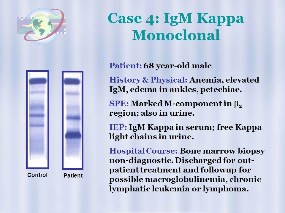Case 4: IgM Kappa Monoclonal