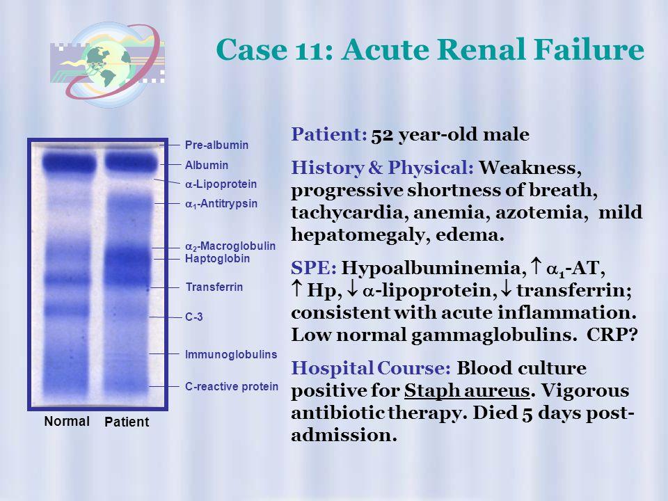 Case 11: Acute Renal Failure