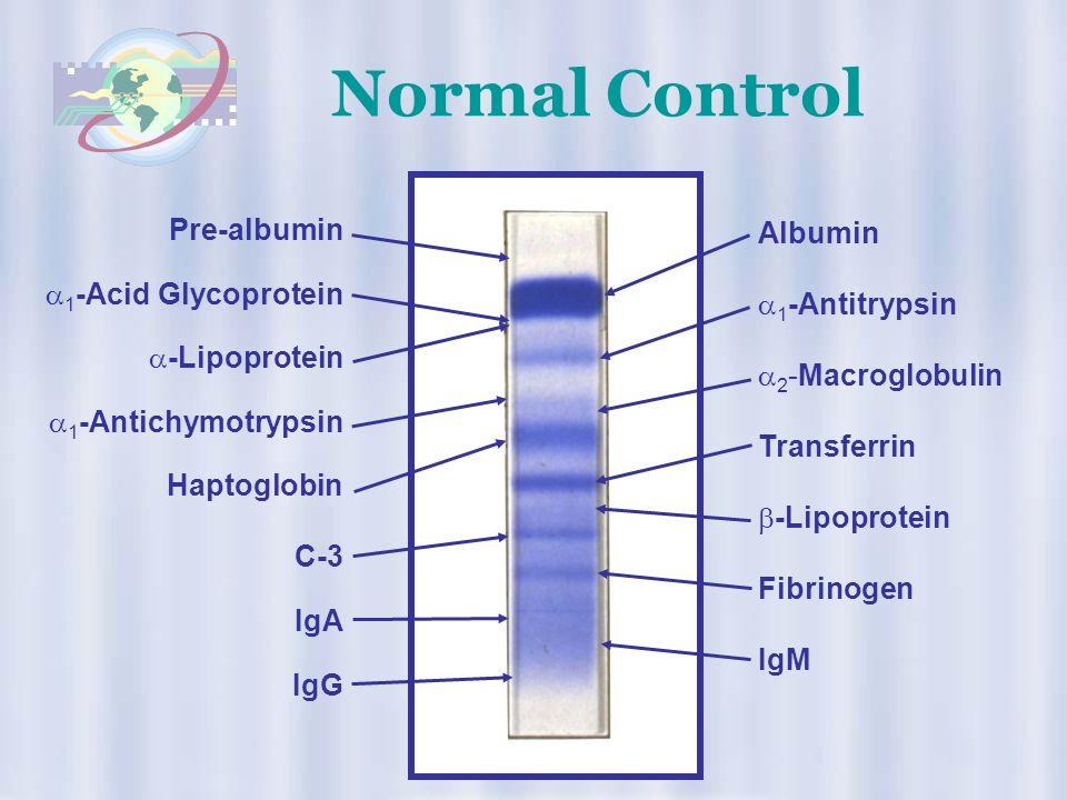 Normal Control Pre-albumin Albumin 1-Acid Glycoprotein 1-Antitrypsin