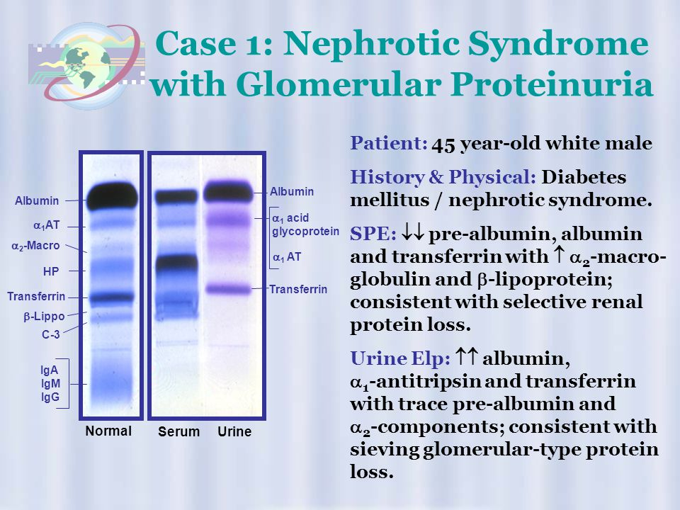 Case 1: Nephrotic Syndrome with Glomerular Proteinuria