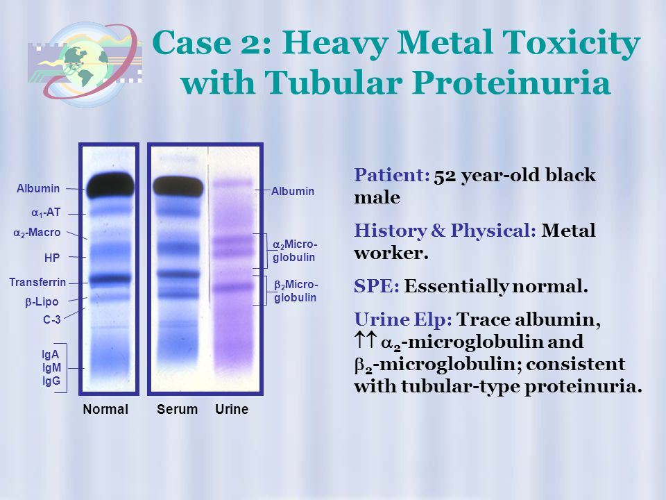Case 2: Heavy Metal Toxicity with Tubular Proteinuria