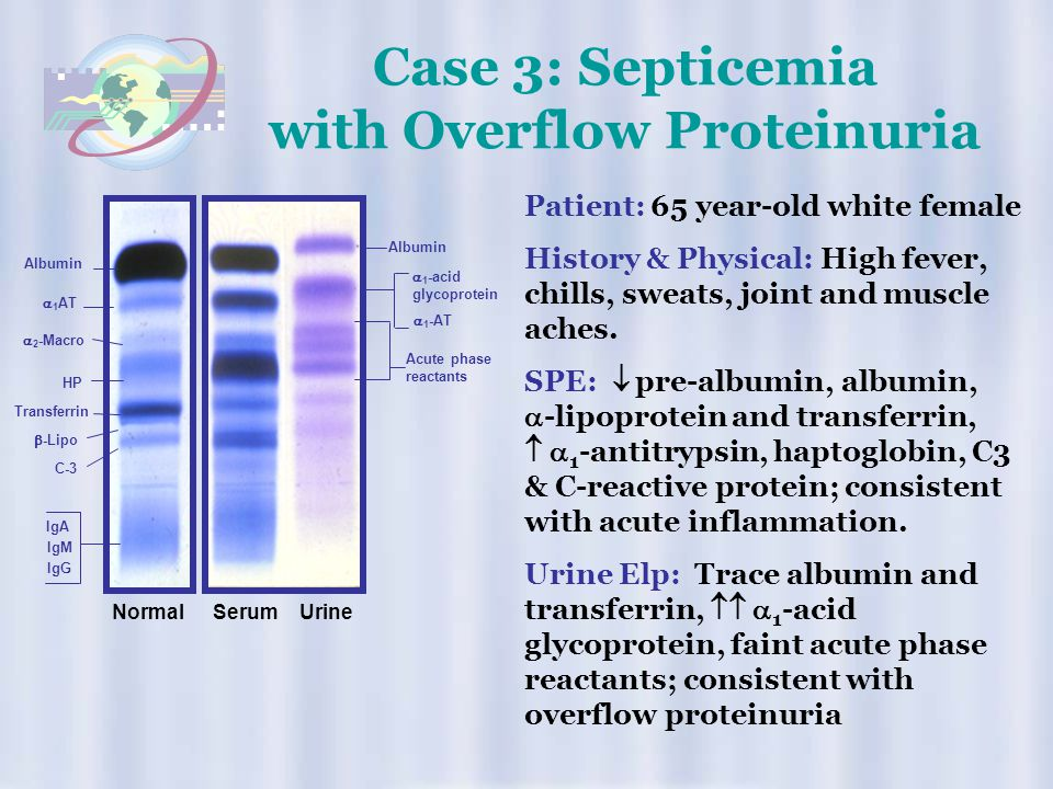 Case 3: Septicemia with Overflow Proteinuria