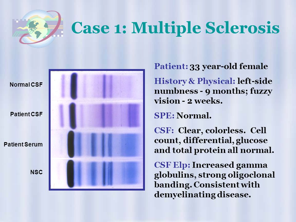 Case 1: Multiple Sclerosis