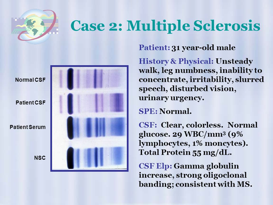 Case 2: Multiple Sclerosis
