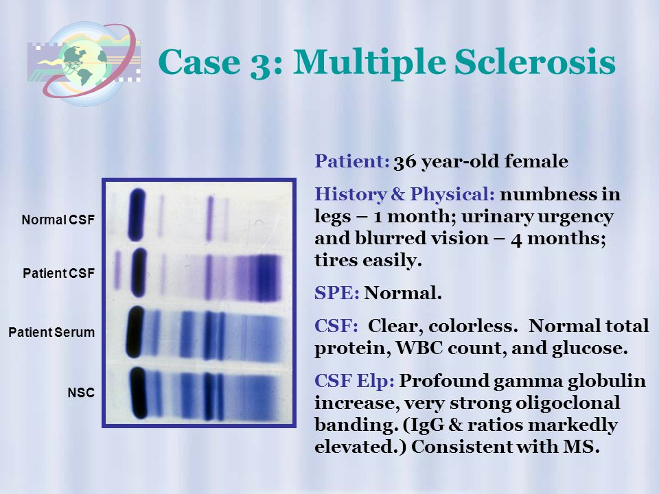 Case 3: Multiple Sclerosis
