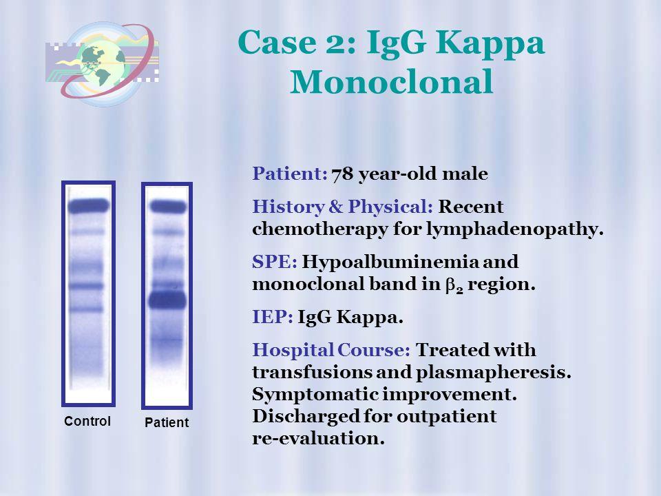 Case 2: IgG Kappa Monoclonal