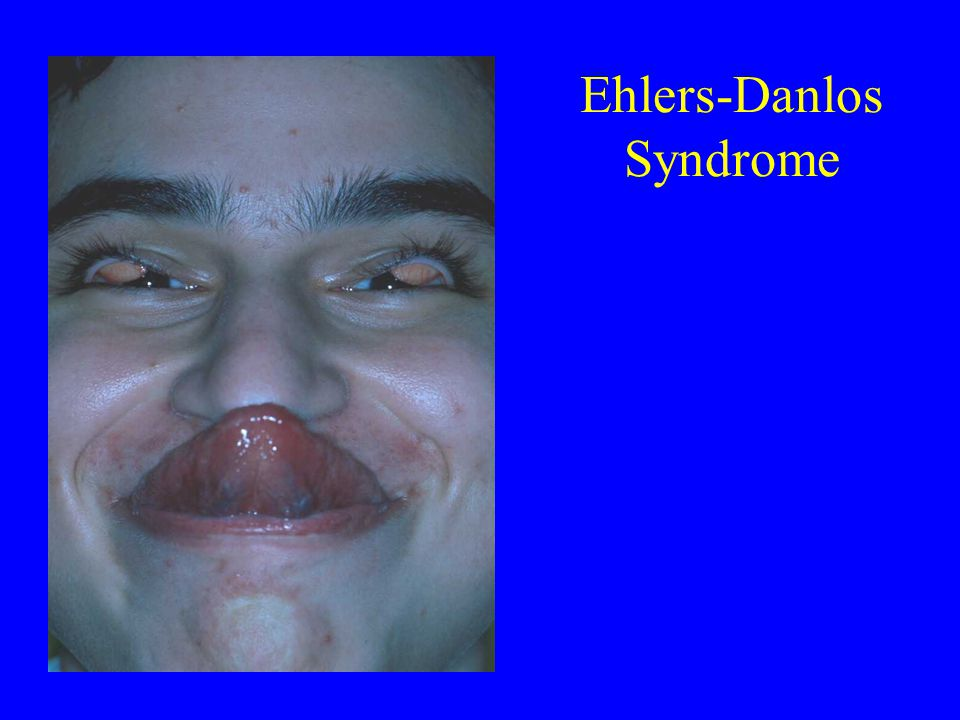 Ehlers-Danlos Syndrome