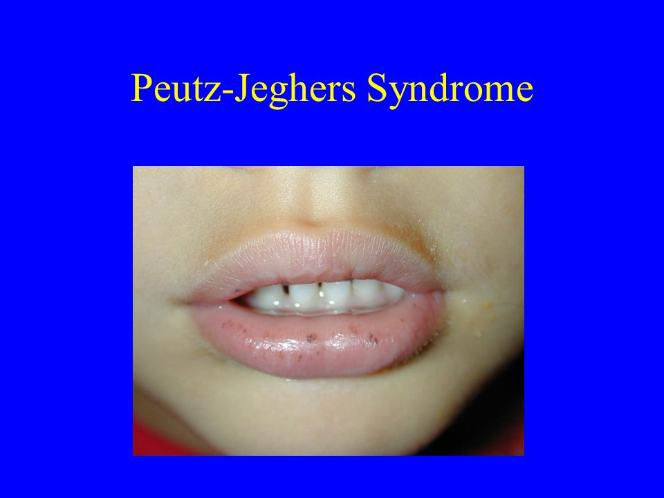 Peutz-Jeghers Syndrome