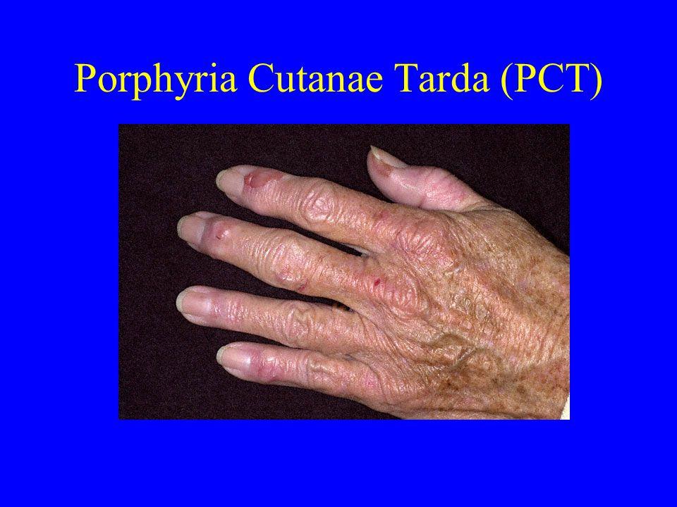 Porphyria Cutanae Tarda (PCT)