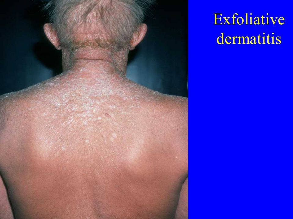 Exfoliative dermatitis