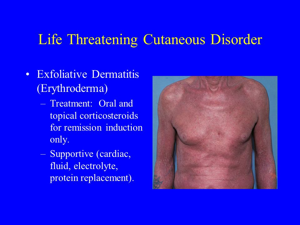 Life Threatening Cutaneous Disorder