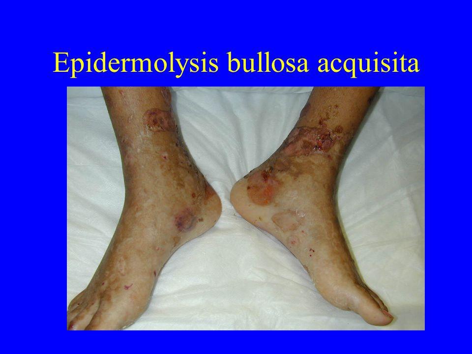 Epidermolysis bullosa acquisita