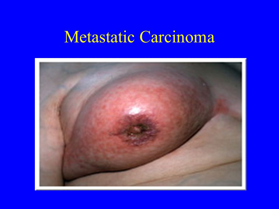 Metastatic Carcinoma
