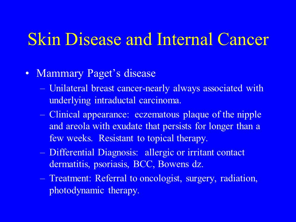 Skin Disease and Internal Cancer
