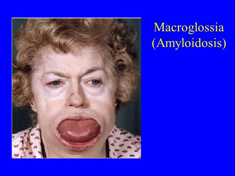 Macroglossia (Amyloidosis)