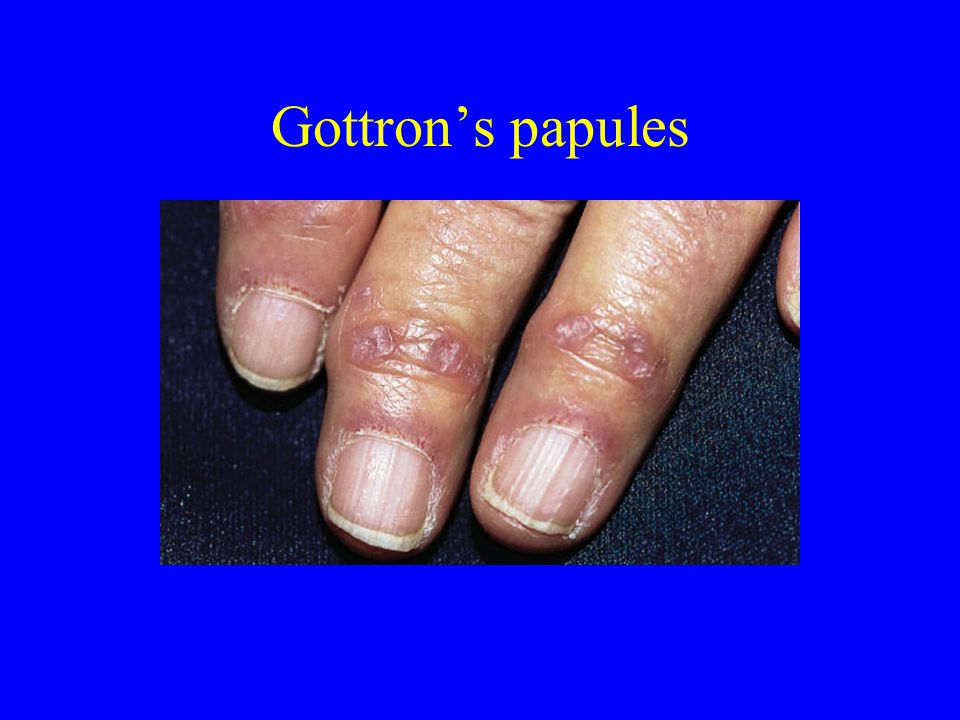 Gottron's papules