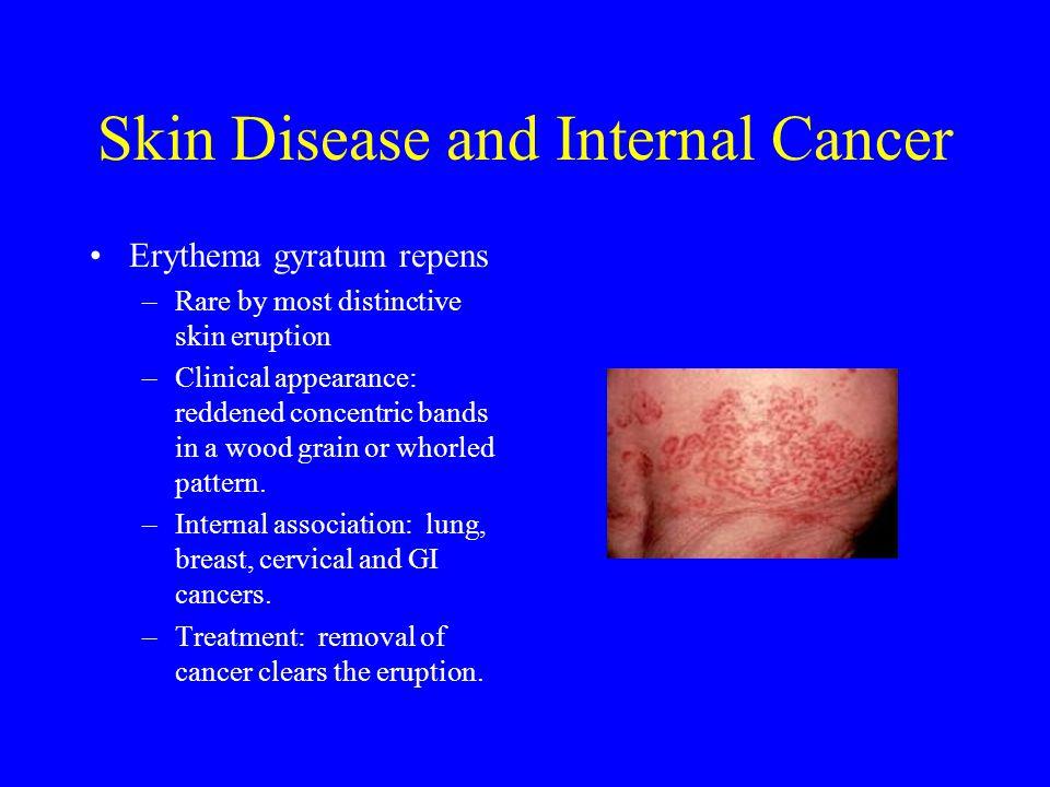 Skin Disease and Internal Cancer