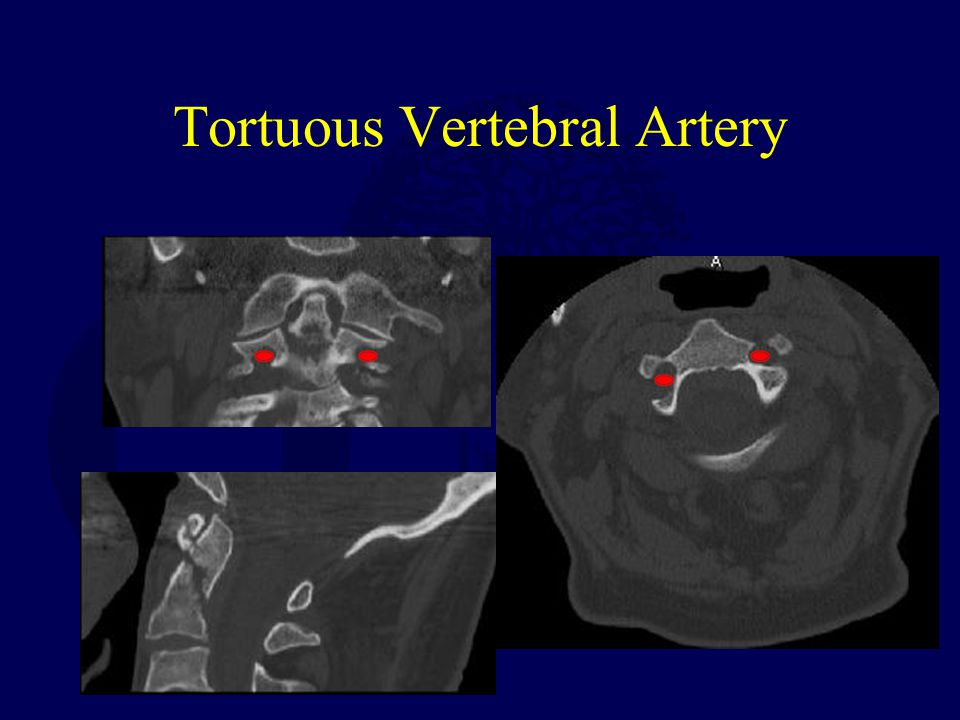 Tortuous Vertebral Artery