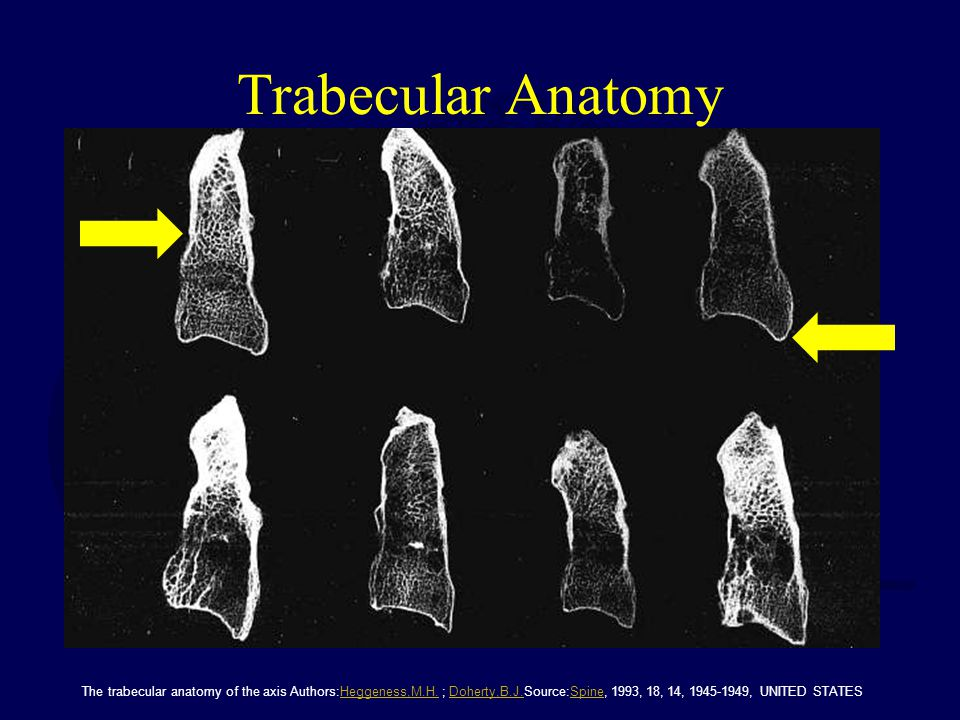 Trabecular Anatomy The trabecular anatomy of the axis Authors:Heggeness,M.H.