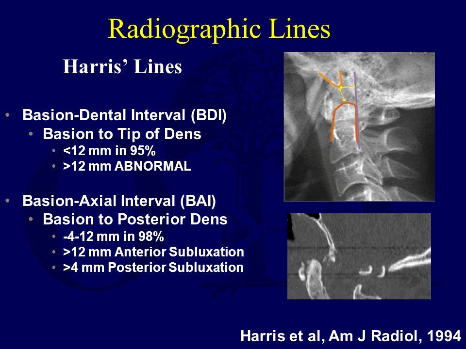 Radiographic Lines Harris' Lines Basion-Dental Interval (BDI)