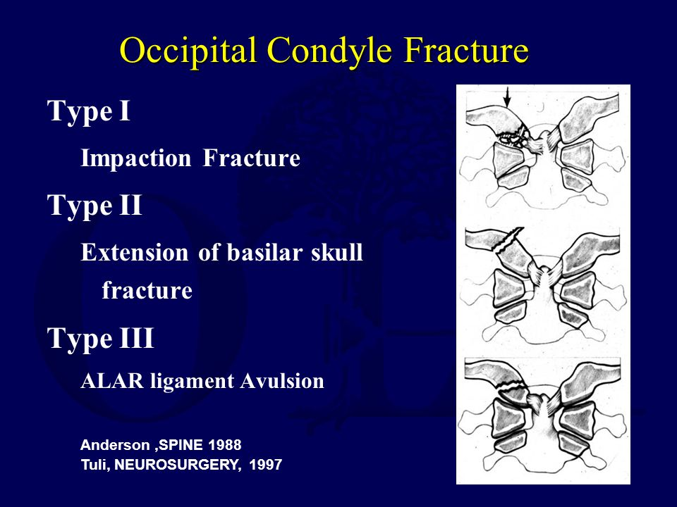 Occipital Condyle Fracture