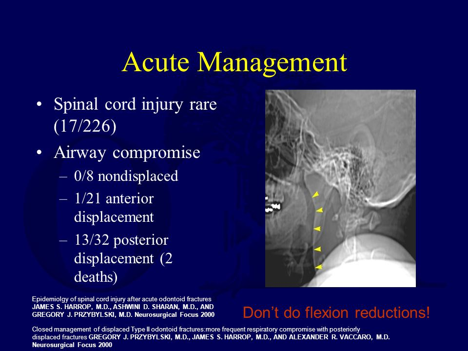 Acute Management Spinal cord injury rare (17/226) Airway compromise