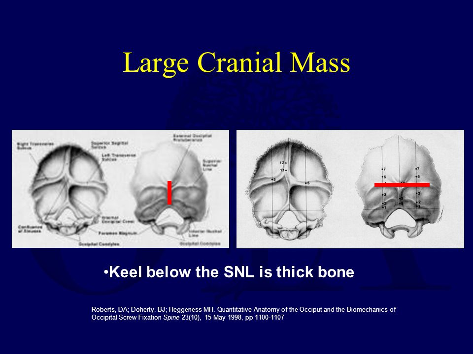 Large Cranial Mass Keel below the SNL is thick bone
