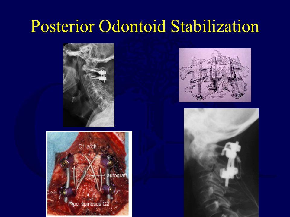 Posterior Odontoid Stabilization