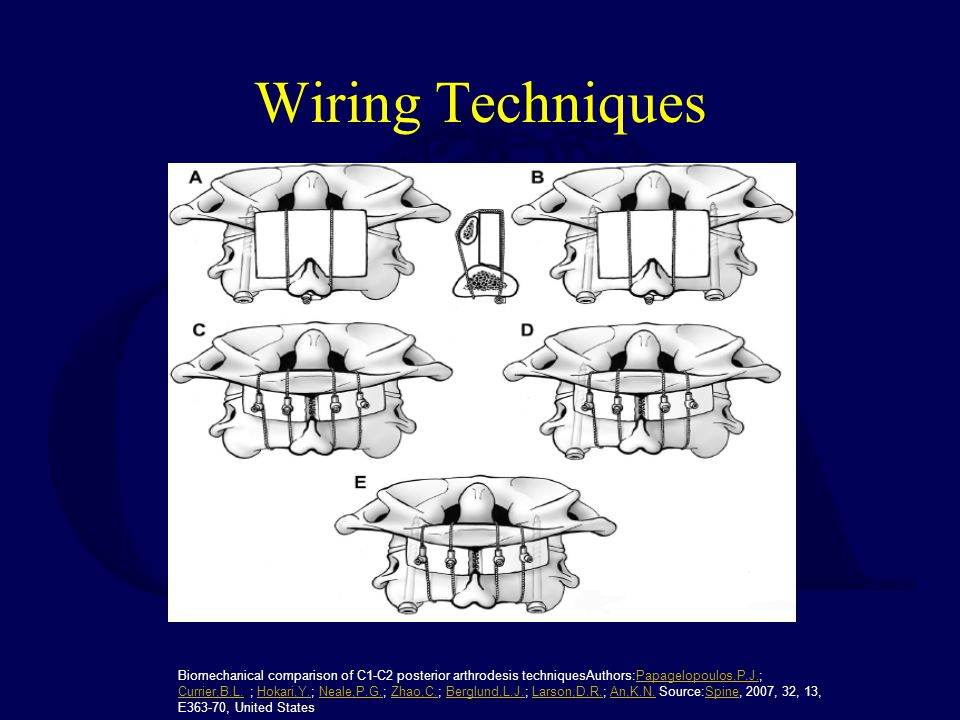 Wiring Techniques