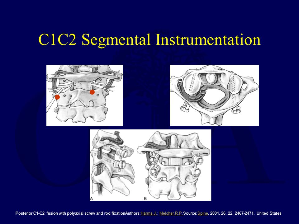 C1C2 Segmental Instrumentation