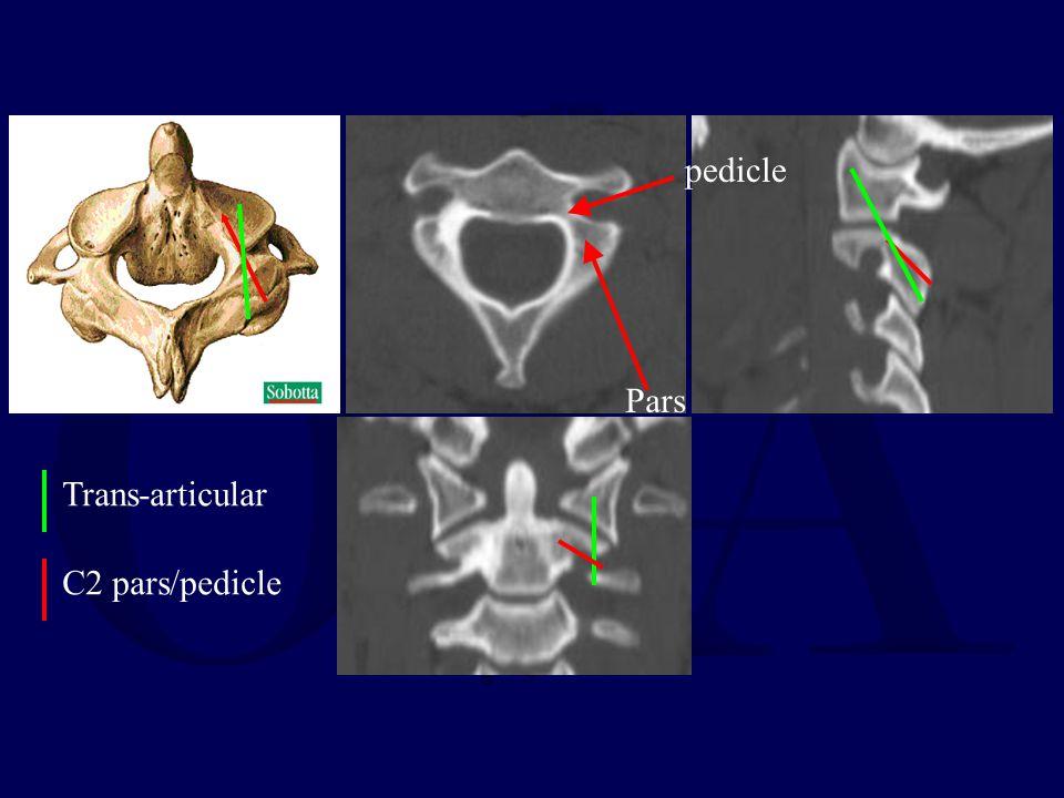 pedicle Pars Trans-articular C2 pars/pedicle