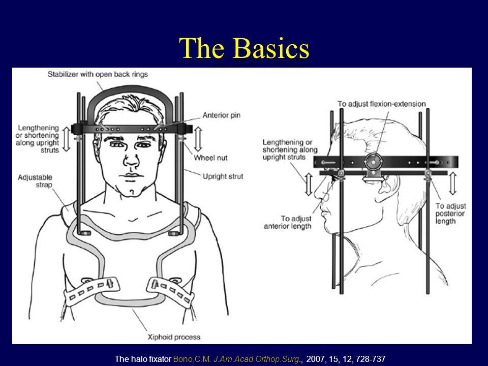 The Basics The halo fixator Bono,C.M. J.Am.Acad.Orthop.Surg., 2007, 15, 12, 728-737