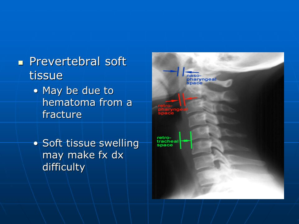 Prevertebral soft tissue