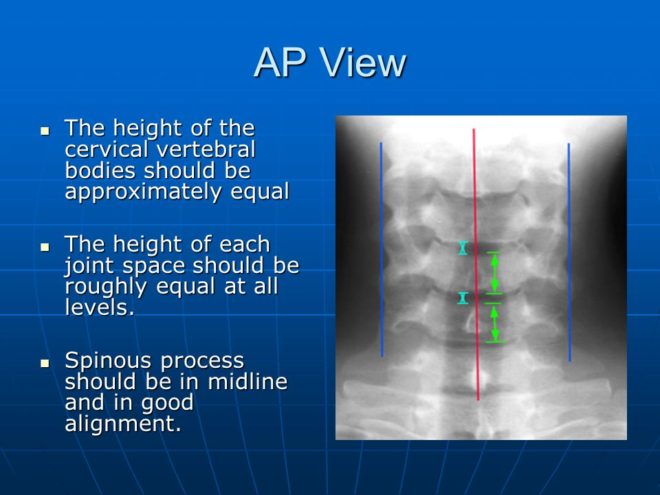 AP View The height of the cervical vertebral bodies should be approximately equal.