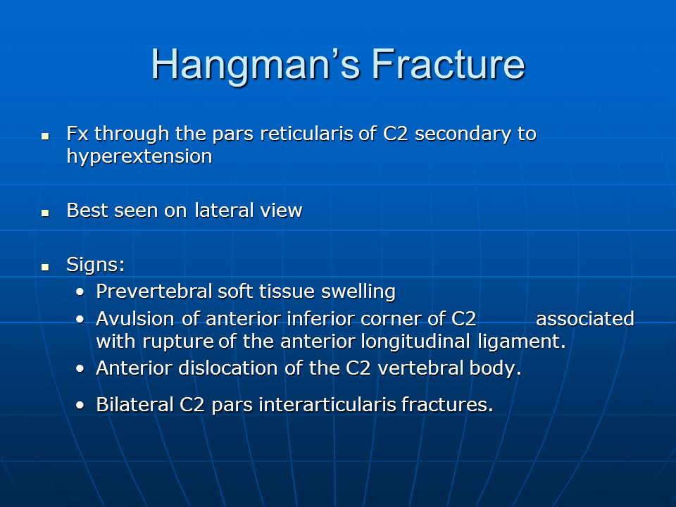 Hangman's Fracture Fx through the pars reticularis of C2 secondary to hyperextension. Best seen on lateral view.