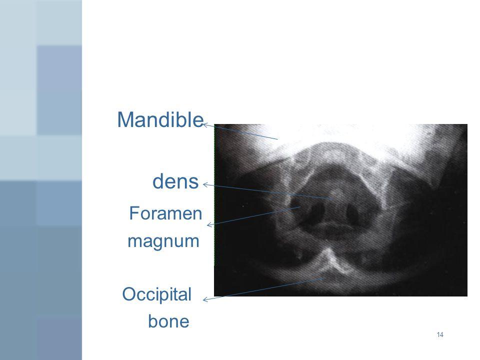 Mandible dens Foramen magnum Occipital bone